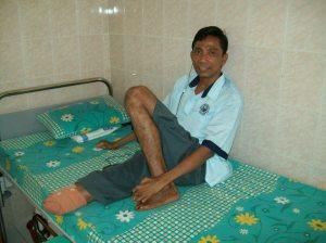 Bpk. Haryono (39 th) salah satu pasien di RS. Kusta Sumberglagah yang diamputasi 10 Juni lalu.